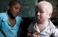 Sukrečianti realybė: vaikai medžiojami dėl savo kūno dalių, kurios parduodamos vietiniams šamanams