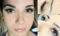 Blakstienų botoksas - tiesa, kurią grožio specialistai nutyli