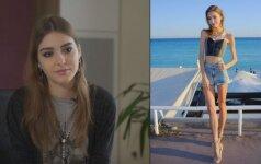 Anoreksija serganti 20-metė keliskart žvelgė mirčiai į akis