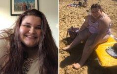 13-metė mergaitė susidūrė su didžiausiu savo košmaru - pasirodė viešumoje vilkėdama maudymuką