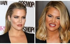 Kas nutiko Khloe Kardashian veidui