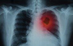 Apie plaučių vėžio rizikos veiksnius - pavojus kyla ne tik rūkantiesiems
