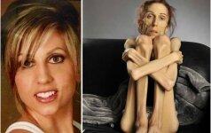 Niekas netikėjo, kad 18 kilogramų svėrusi moteris išgyvens, tačiau jos vyras nepasidavė