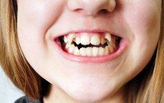 Kreivi dantys: kada kreiptis pagalbos jau gali būti vėlu?