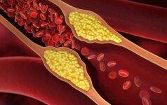 Maisto produktai, kurie padės sumažinti cholesterolio lygį organizme