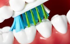 Visa tiesa apie dantų dygimą interviu su gydytoja
