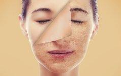 Pavyzdys, kaip netinkama odos priežiūra gali sukurti gausybę problemų