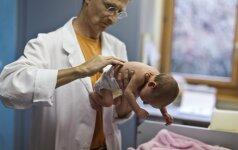 Unikali operacija išgelbėjo per anksti gimusias ir kūnais suaugusias seseris
