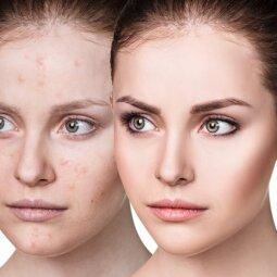 Nori atrodyti kaip ta mergina dešinėje? Turėti gražią odą įmanoma tik įsidėmėjus šią informaciją