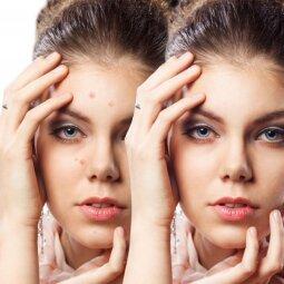 5 dalykai, kurių nė už ką negalima daryti merginoms, kankinamoms spuogelių