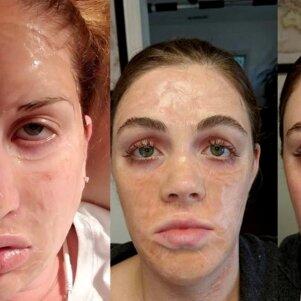 Baisiausią efektą suteikianti veido kaukė žemėje: išsigąstum pati savęs (FOTO)