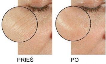 Kosmetologė papasakojo apie vertingiausias priemones odos grožiui