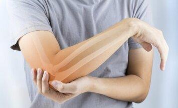 Svarbiausia osteoporozės priežastis – per mažas kiekis kalcio ir vitamino D