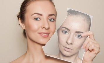 Odos šveitimas: kodėl jis tiesiog būtinas, norint turėti gražią odą