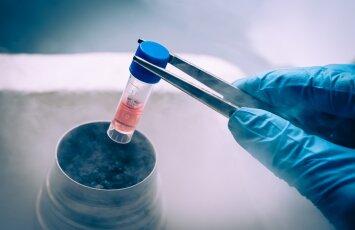 Populiarėja gydymas kamieninėmis ląstelėmis: ką reikia žinoti?