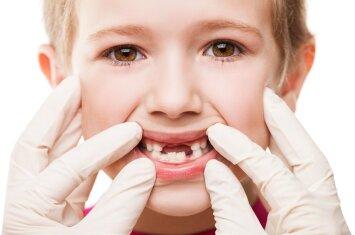 6 klausimai apie dantų silantus