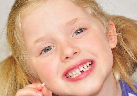 Pieniniai dantys: rauti klibančius ar laukti, kol iškris patys?