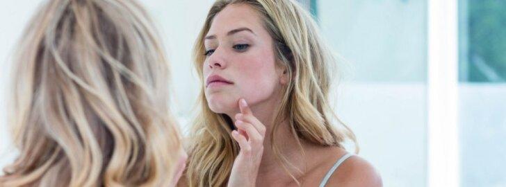 Pirmą kartą Lietuvoje - raustančios odos pažinimo mėnuo