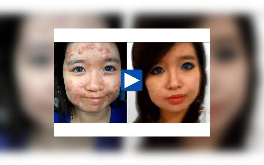 Девушка с акне, преобразившаяся с помощью макияжа, стала сенсацией