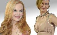 """Nicole Kidman atsikratė <span style=""""color: #c00000;"""">krūtų implantų</span>"""