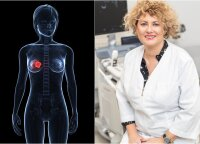 Gydytoja atkreipė dėmesį į pagrindines krūtų ligas ir požymius: kada reikėtų susirūpinti?