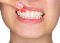 Galite nė nesuprasti, kad prasidėjo dantenų uždegimas: atkreipkite dėmesį į 6 simptomus