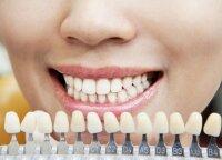 Odontologas perspėja, kas daro didesnę žalą dantims nei kava