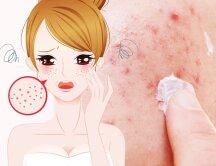 BŪK ATSARGI: 6 grožio klaidos, kurios geruoju nesibaigs