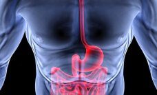 Gerklės vėžys: kai kurie veiksniai riziką didina 78 proc.