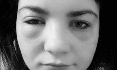 Sutinęs Liūnės veidas