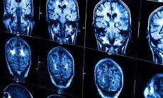 Smegenų vaizdinimo rezultatai