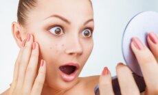 Žvilgtelk į veidrodį - kokius tavo sveikatos sutrikimus jis išduoda?