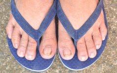 Pėdų grybelis: gydymas ir prevencija