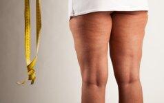 Masažistas iš Egipto: moterys galvoja, kaip celiulitą užmaskuoti, o ne išgydyti