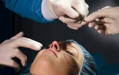 Plastinė operacija