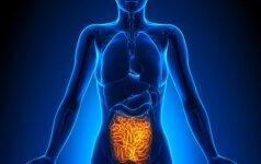 Nustatė, kam gresia didesnė tikimybė susirgti žarnyno vėžiu