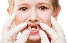 9 svarbūs klausimai gydytojai apie dantų taisymą