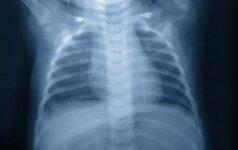Ar plaučių rentgeno tyrimas nekenkia sveikatai?
