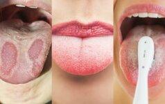 Liežuvis – organizmo veidrodis: sužinok savo sveikatos problemas