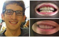 Dantis ištiesino 3D spausdintuvo pagalba