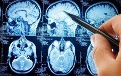 Miestų gyventojams – grėsmingas mokslininkų perspėjimas: įrodymai užfiksuoti smegenyse