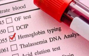 Ką rodo per didelis hemoglobino kiekis kraujyje?