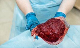 placenta, gimdymas