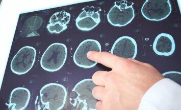 Smegenų nuotrauka