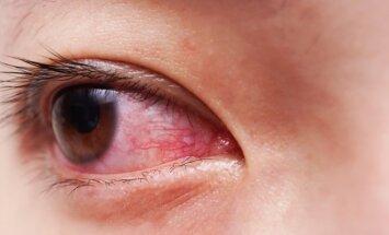 Ką daryti, jei vargina akių sausumas