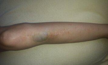 Viktorijos koja po operacijos