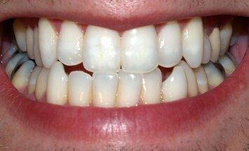 Kiek sulčių gerti, kad dantys išliktų nepažeisti? (David Shankbone nuotr. )