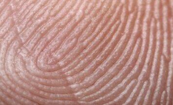 Žmogaus oda iš arti
