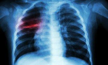 Tuberkuliozės židinys plaučiuose