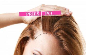 Kaip sustabdyti plaukų slinkimą, paskatinti jų augimą ir atkurti tankumą